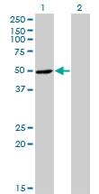 H00006050-M07 - Ribonuclease inhibitor (RNH1)