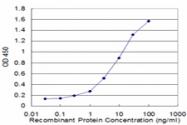 H00006279-M02 - S100A8 / Calgranulin-A / MRP8
