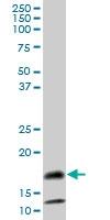 H00006291-B02P - Serum amyloid A-4 protein (SAA4)