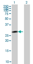H00006297-B01 - Sal-like protein 2 (SALL2)