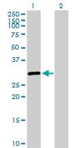 H00006297-D01P - Sal-like protein 2 (SALL2)