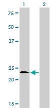 H00006297-M10 - Sal-like protein 2 (SALL2)