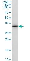 H00006386-D01 - Syntenin-1 / SDCBP