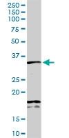 H00006386-D01P - Syntenin-1 / SDCBP