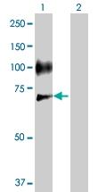 H00006401-D01P - CD62E / E-Selectin