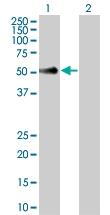 H00006402-B02 - CD62L / L-Selectin