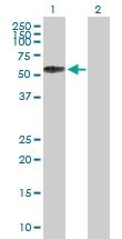 H00006402-B02P - CD62L / L-Selectin
