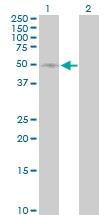 H00006402-D01P - CD62L / L-Selectin