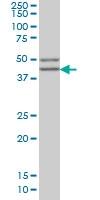 H00006443-M02 - SGCB (Beta-sarcoglycan)