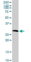 H00006445-D01 - SGCG (Gamma-sarcoglycan)