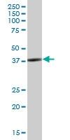 H00006457-B01P - Endophilin-A3