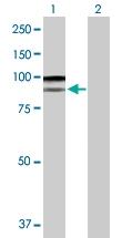 H00006490-D01P - Melanoma gp100