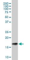 H00006623-M01A - Gamma-Synuclein / SNCG