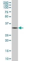 H00006626-B01P - U1 snRNP protein A