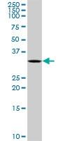 H00006626-D01P - U1 snRNP protein A
