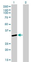H00006626-M01 - U1 snRNP protein A