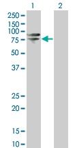 H00006642-B02 - Sorting nexin-1 (SNX1)