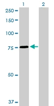 H00006642-D01P - Sorting nexin-1 (SNX1)