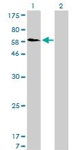 H00006642-M01 - Sorting nexin-1 (SNX1)