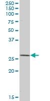 H00006648-B02 - Superoxide dismutase 2 / SOD2