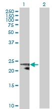 H00006648-B02P - Superoxide dismutase 2 / SOD2