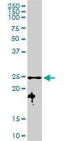H00006648-D01P - Superoxide dismutase 2 / SOD2