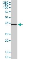 H00006678-M02 - SPARC / Osteonectin