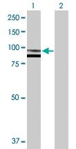H00006687-D01P - Paraplegin / SPG7