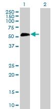 H00006696-D01P - Osteopontin / SPP1