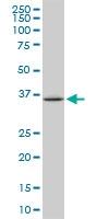 H00006696-M05 - Osteopontin / SPP1
