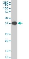 H00006696-M06 - Osteopontin / SPP1