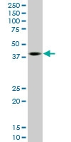 H00006696-M09 - Osteopontin / SPP1