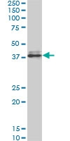 H00006696-M10 - Osteopontin / SPP1