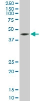 H00006696-M11 - Osteopontin / SPP1