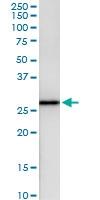 H00006697-D01 - Sepiapterin reductase / SPR