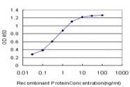 H00006707-M01 - SPRR3 / Cornifin beta