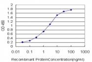 H00006722-M01 - Serum response factor (SRF)