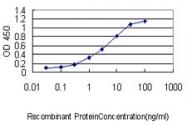 H00006722-M02 - Serum response factor (SRF)