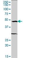 H00006722-M04 - Serum response factor (SRF)