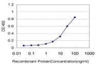H00006768-M05 - ST14 / Matriptase