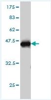 H00006781-M01 - Stanniocalcin 1 / STC1