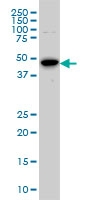 H00006790-M01 - Aurora kinase A
