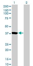 H00006795-B01P - Aurora kinase C