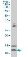 H00006843-M02 - VAMP-1 / Synaptobrevin-1