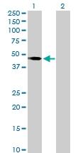 H00006862-D01P - T (Brachyury protein)