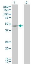 H00006862-D03P - T (Brachyury protein)