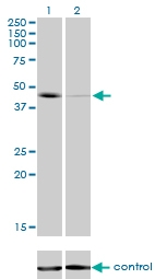 H00006862-M01 - T (Brachyury protein)