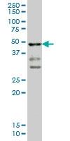 H00006862-M02 - T (Brachyury protein)