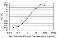 H00006862-M04 - T (Brachyury protein)