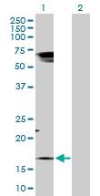 H00006863-D01P - Protachykinin-1 (TAC1)